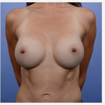 Breast Augmentation (370gm) after 3052132