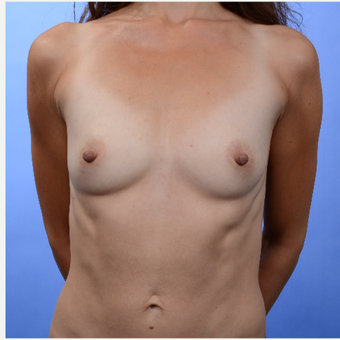 Breast Augmentation (370gm) before 3052132