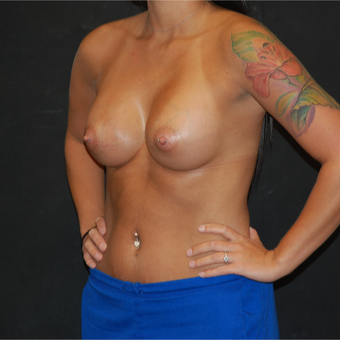 18-24 year old woman treated with Breast Augmentation after 3710713
