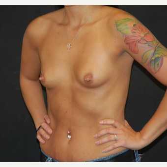18-24 year old woman treated with Breast Augmentation before 3710713