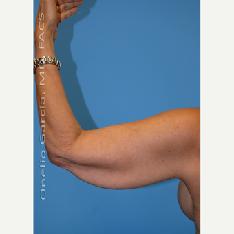 45-54 year old woman treated with Arm Lift + Vaser Lipo before 3008701