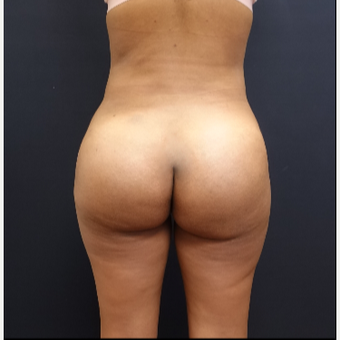 25-34 year old woman treated with Butt Augmentation after 3731669