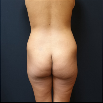 25-34 year old woman treated with Butt Augmentation before 3731669