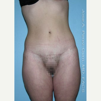 18-24 year old woman treated with Tummy Tuck after 1856763