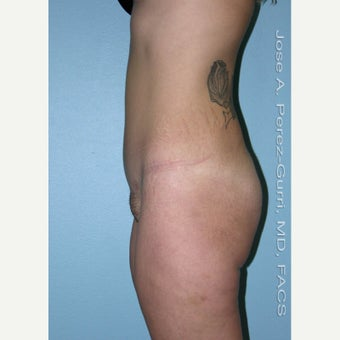 18-24 year old woman treated with Tummy Tuck 1856763