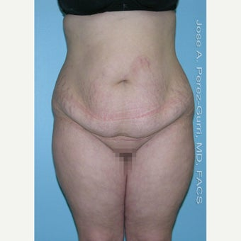 18-24 year old woman treated with Tummy Tuck before 1856763
