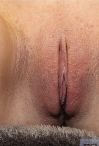 25-34 year old woman treated with Labiaplasty after 1706133