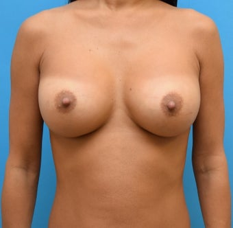 35-44 year old woman treated with Breast Augmentation after 3423644