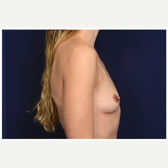 25-34 year old woman treated with Breast Implants before 3246002