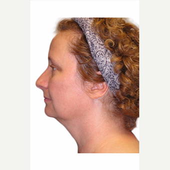 45-54 year old woman treated with Neck Lift before 3409114
