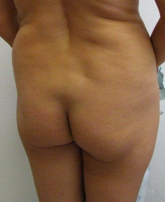 Brazilian Butt Lift for 41 year old woman.