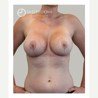 18-24 year old woman treated with Breast Lift with Implants after 1617945