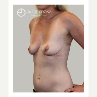 18-24 year old woman treated with Breast Lift with Implants 1617945