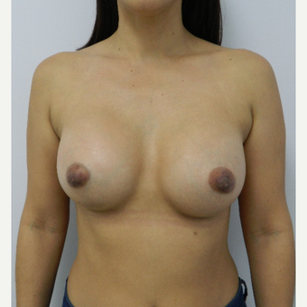 35-44 year old woman treated with Breast Augmentation after 3060277