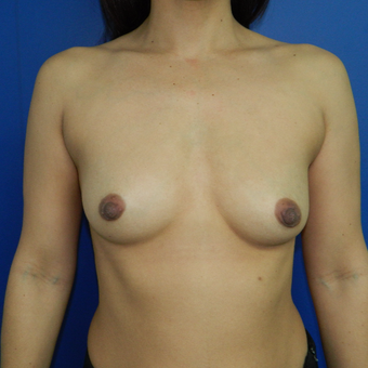 35-44 year old woman treated with Breast Augmentation before 3060277