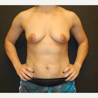 25-34 year old woman treated with Breast Implants before 3071677