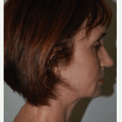 45-54 year old woman treated with Facelift before 3500732