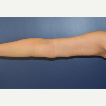 35-44 year old woman treated with Arm Lift after 3408497