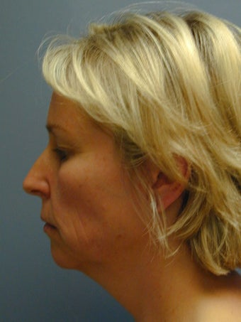 Chin Surgery/Augmentation on 46-year-old 841876