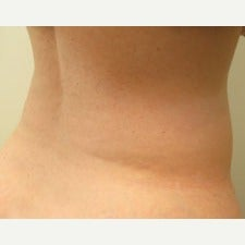 57 year old woman treated with CoolSculpting after 1944813