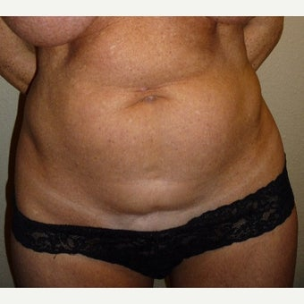 35-44 year old woman with Mini Tummy Tuck before 1972380