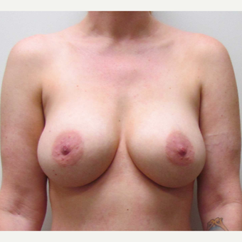 Breast Implant Replacement for this 38 Year Old Woman after 3791580