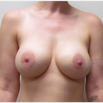 Breast Implant Replacement for this 38 Year Old Woman before 3791580