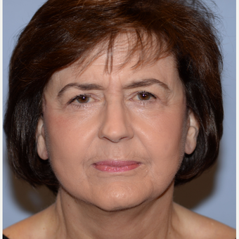 68 year old woman treated with Face and Neck Lift after 3241120