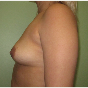 25-34 year old woman treated with Breast Implants before 3423929