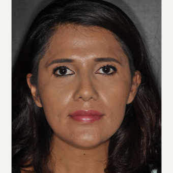 25-34 year old woman treated with Rhinoplasty 10 days post-op after 3452292