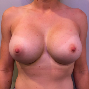 25-34 year old woman treated with Breast Augmentation after 3850510