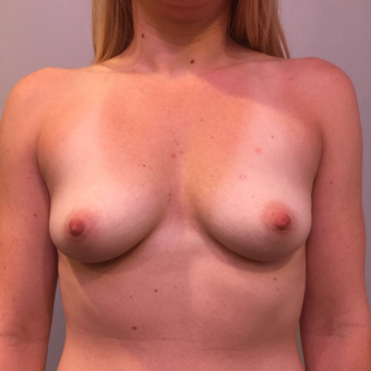 25-34 year old woman treated with Breast Augmentation before 3850510