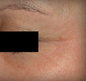Wrinkle Treatment after 1103976