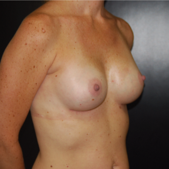 25-34 year old woman treated with Breast Augmentation after 3251473