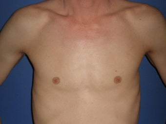 Transgender Breast Augmentation before 1330762