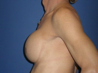 Transgender Breast Augmentation 1330762