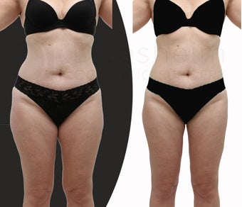 Body-jet (water liposuction) liposuction for lower body before 1128781