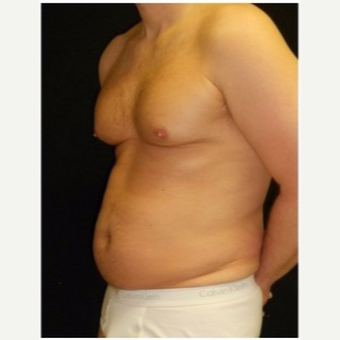 45-54 year old man treated with Liposuction before 3046627