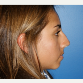 18 year old woman treated with Rhinoplasty before 3065699