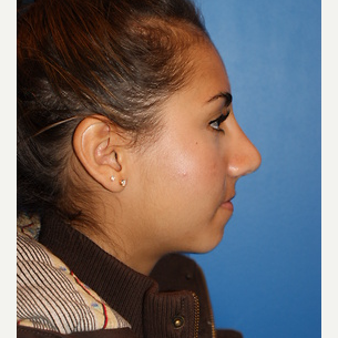 18 year old woman treated with Rhinoplasty after 3065699