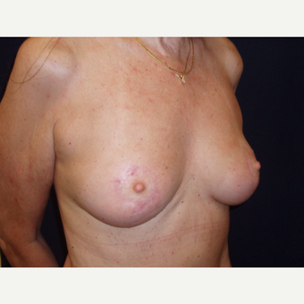 45-54 year old woman treated with Breast Lift after 3194295