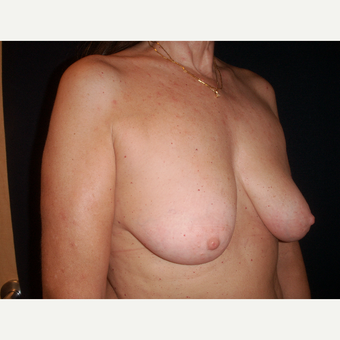 45-54 year old woman treated with Breast Lift before 3194295