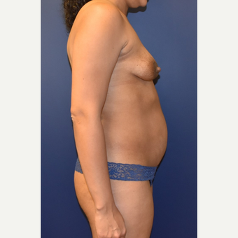 35-44 year old woman treated with Breast Lift with Implants before 3348706