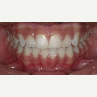 17 or under year old woman treated with Braces after 3669241