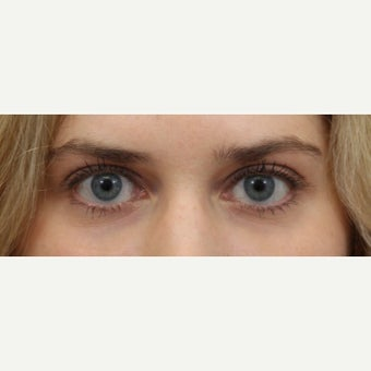 25-34 year old woman treated with Restylane for eye bags after 2533726