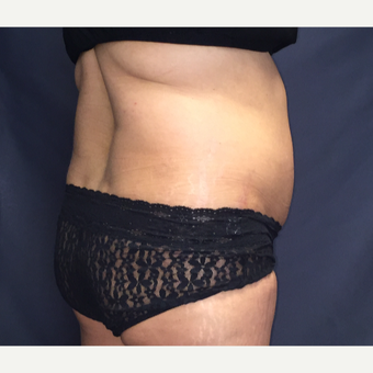45-54 year old woman treated with SculpSure after 3725322