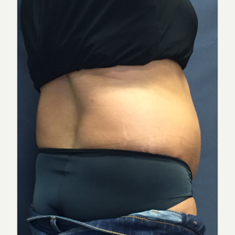 45-54 year old woman treated with SculpSure before 3725322