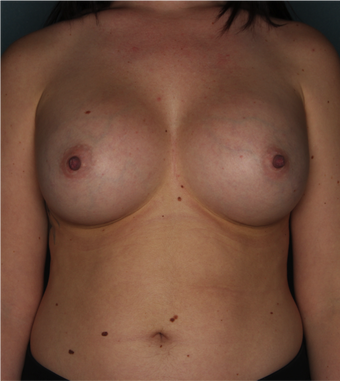 Breast Augmentation after 2925714