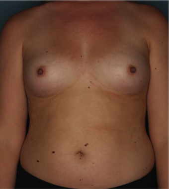 Breast Augmentation before 2925714