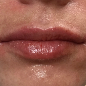 25-34 year old woman treated with Juvederm after 3099048
